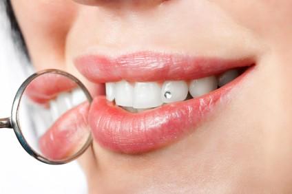 dental mouth mirror near healthy white woman teeth with precious stone on it